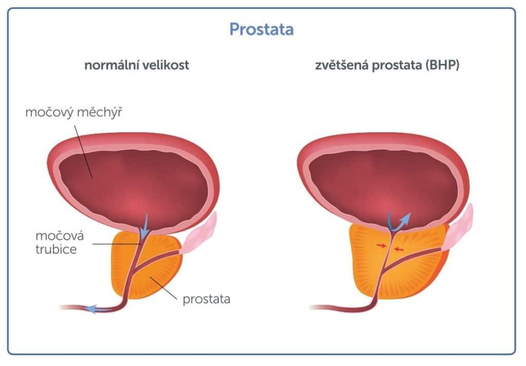 velikost prostaty