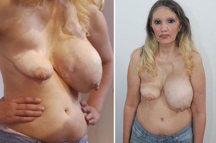 nepovedená plastika prsou