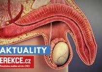 co je erektilní dysfunkce?