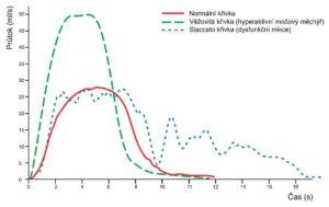 uroflowmetrická křivka