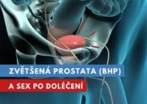 zvětšená prostata a sex