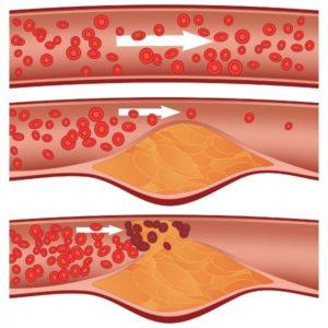 ateroskleróza a erekcia