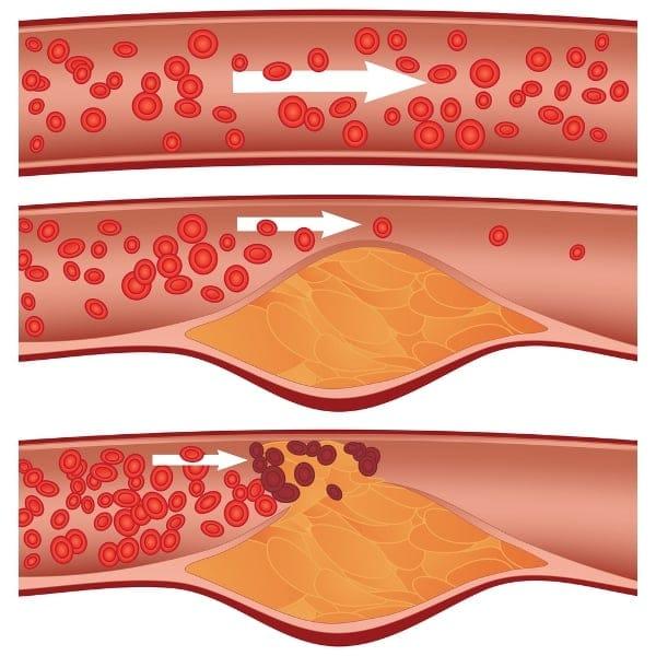 ateroskleróza a erekce