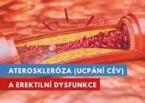 ateroskleróza a erektilní dysfunkce